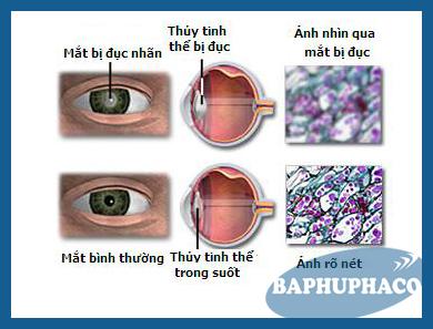 Sức khỏe đôi mắt: bệnh đục thủy tinh thể